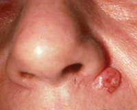 Squamous Cell Carcinoma Example