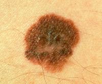 Melanoma with Color Variation