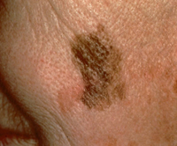 Melanoma with Changing Diameter